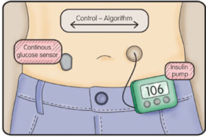 "What is ""automated insulin delivery"