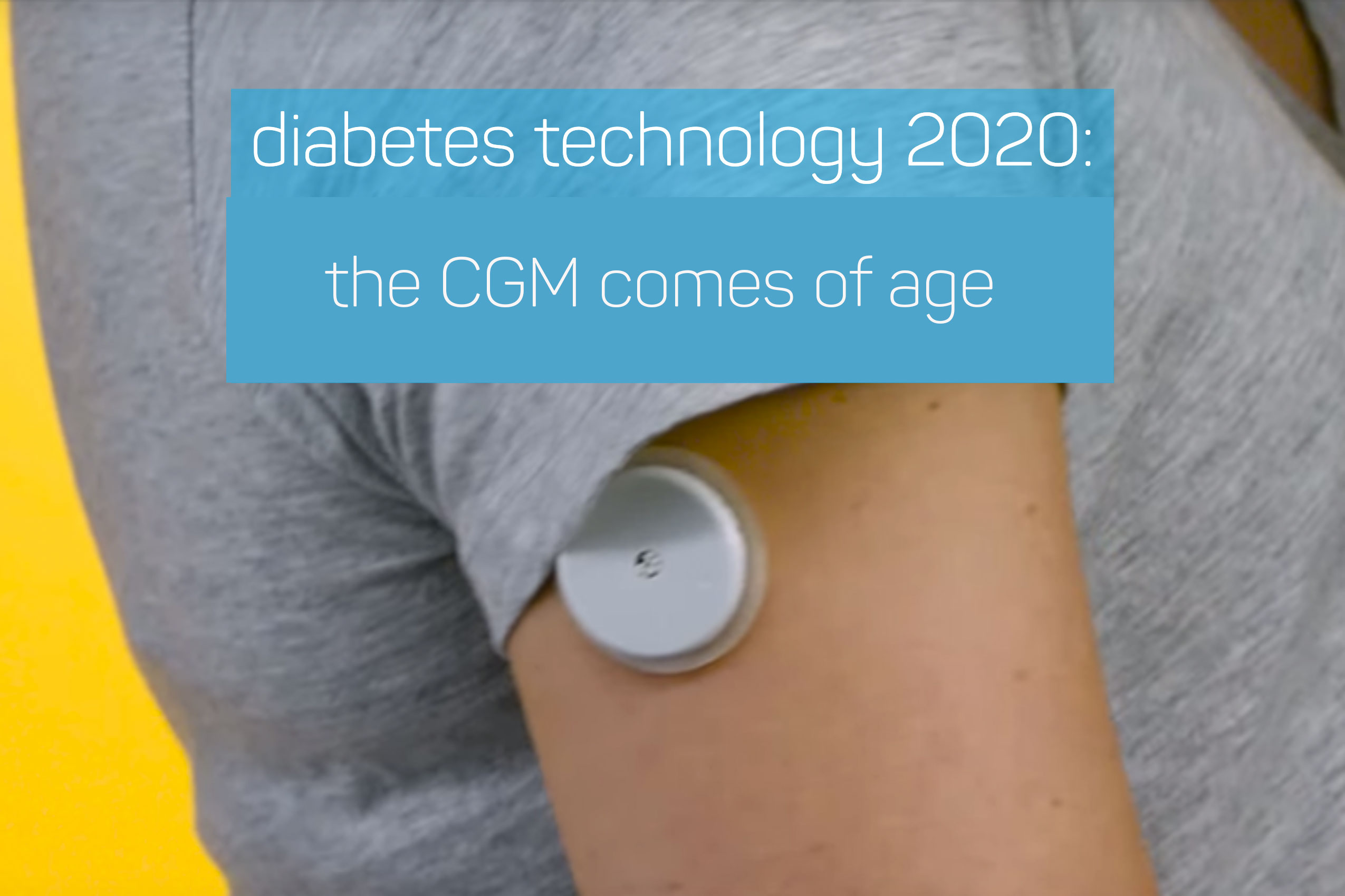CGM-Technology-2020